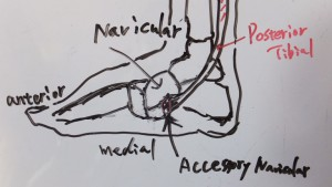 Accessory navicular 1
