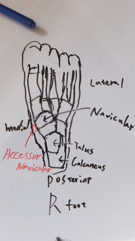 Accessory Navicular Syndrome