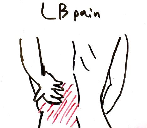 腰痛 み 左